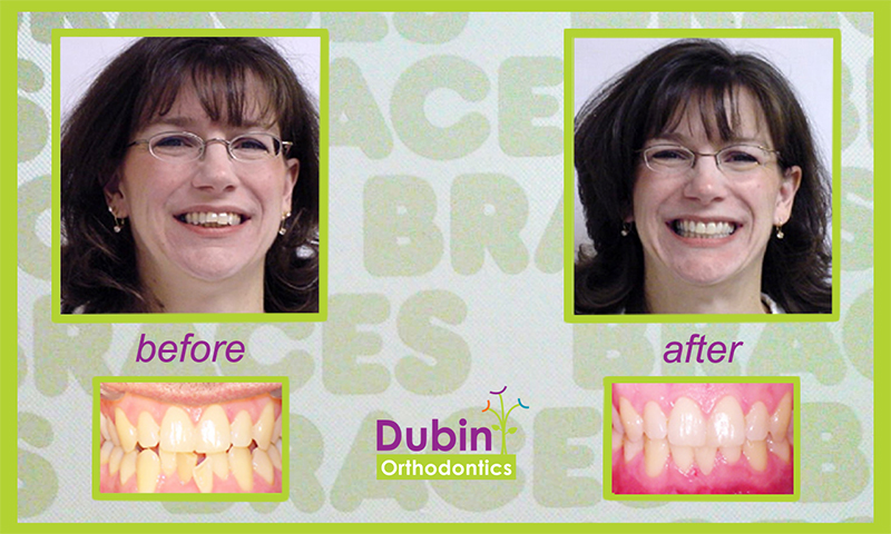 Before and After at Dubin Orthodontics!